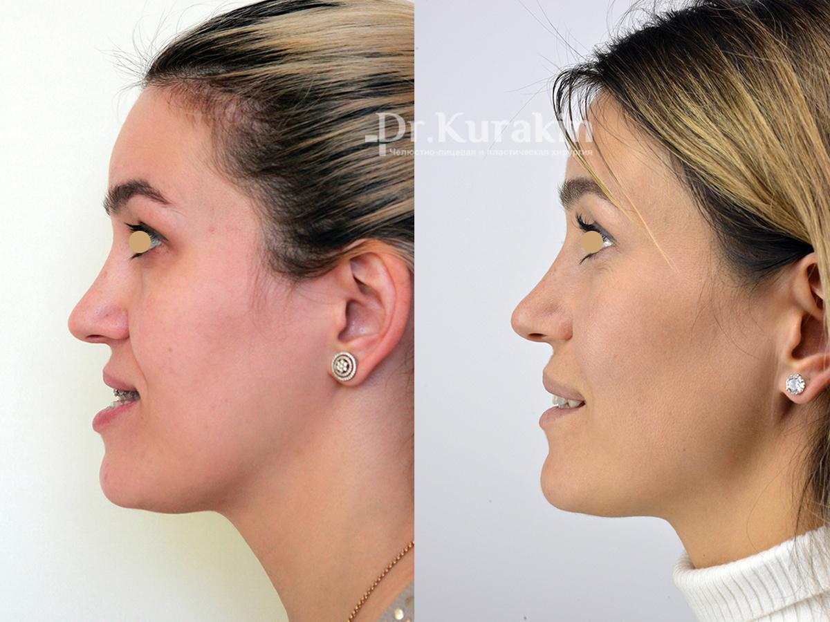 Как делают операцию на челюсть фото